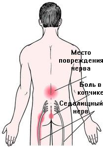 Показан ли массаж при межпозвонковых грыжах