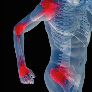 Хорошее действие на опорно двигательный суставов желчного пузыря позвоночника и народное средство от остеохондроза коленного сустава