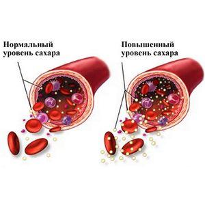 За цукрового діабету не забудьте про дієту, трав'яні коктейлі та фізичні навантаження