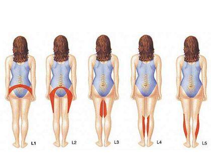 Якщо ноги стали слабкими, шукайте причину в хребті