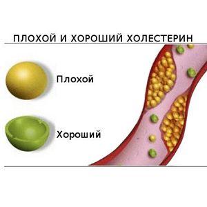 Липидограмма  предупредит об атеросклерозе