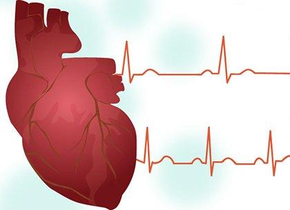 Тахикардия - учащенное сердцебиение